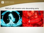 nsclc with invasion onto descending aorta