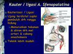 kauter ligasi a sfenopalatina