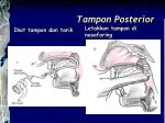 tampon posterior1