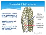 sternal rib fractures