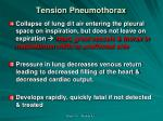 tension pneumothorax