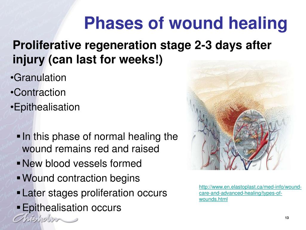 PPT - Physiology of wound healing PowerPoint Presentation - ID:2079549