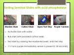 testing seminal stains with acid phosphatase