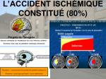 l accident isch mique constitu 80