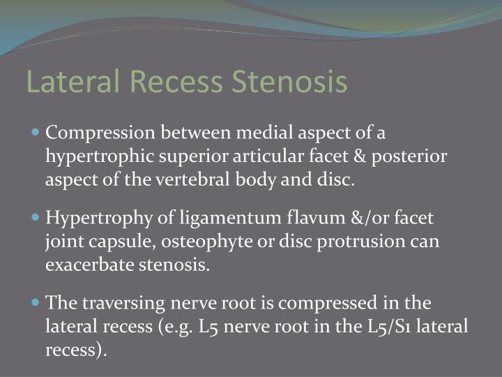 Lateral Recess Stenosis