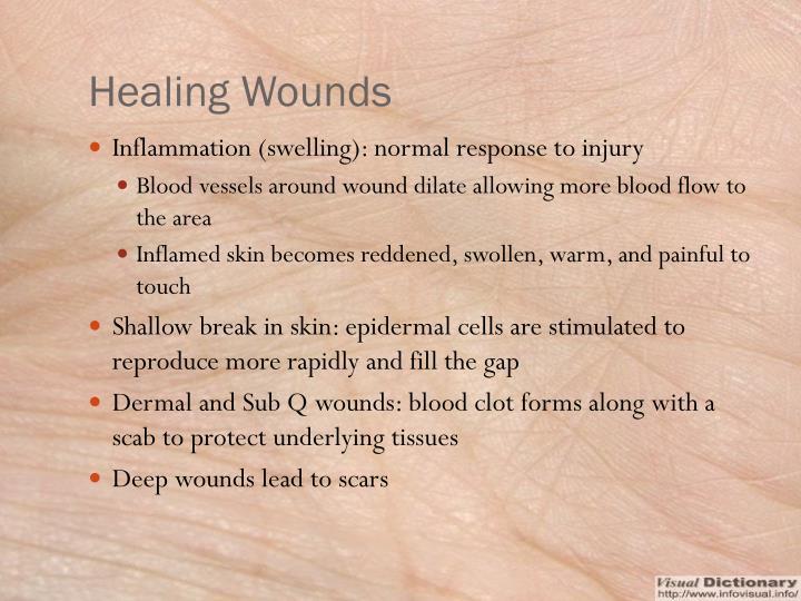 Healing Wounds