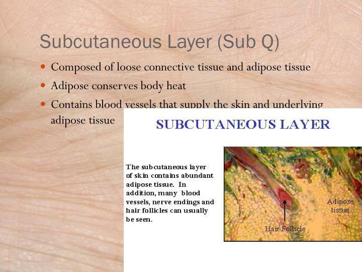 Subcutaneous Layer (Sub Q)