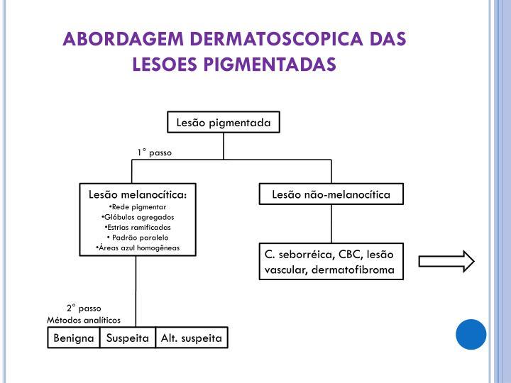 ABORDAGEM DERMATOSCOPICA DAS LESOES PIGMENTADAS