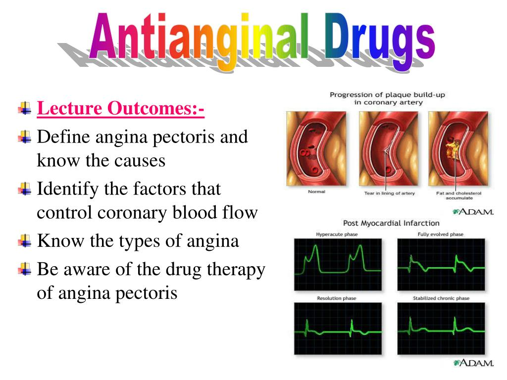ppt - lecture outcomes:- define angina pectoris and know the causes