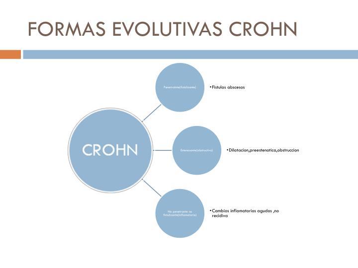 FORMAS EVOLUTIVAS CROHN