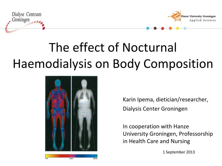 The effect of Nocturnal Haemodialysis on Body Composition