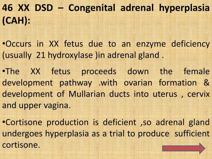 46 XX DSD – Congenital adrenal hyperplasia  (CAH):