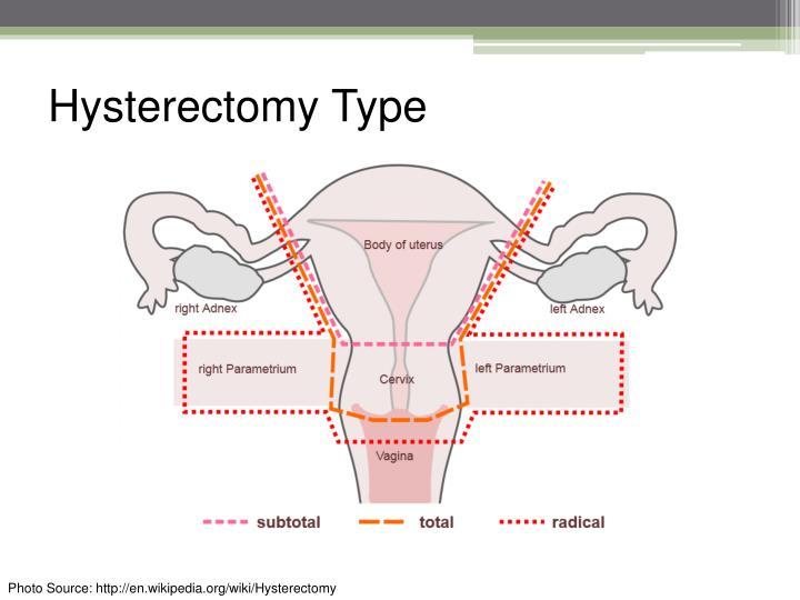 Hysterectomy Type