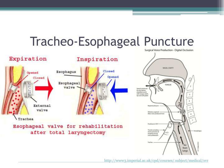 PPT - Laryngeal Cancer PowerPoint Presentation - ID:2098953