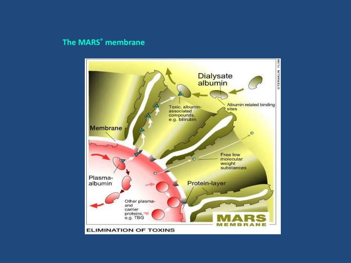 The MARS