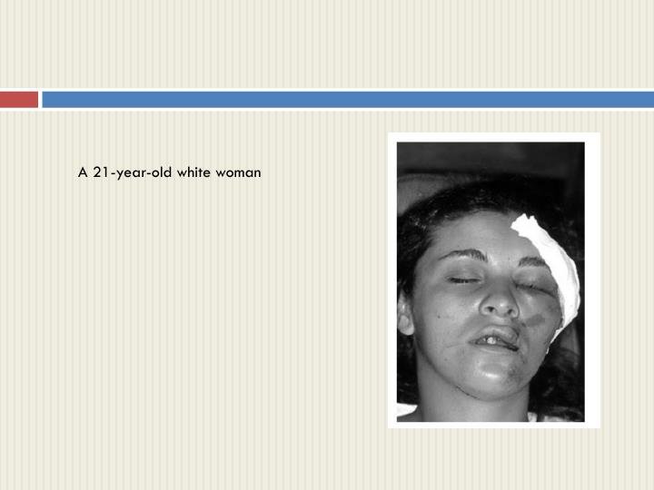 A 21-year-old white woman