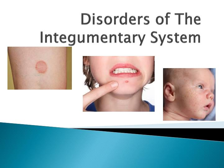 disorders of the integumentary system n.