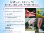 beighton s criteria for generalized joint hypermobility