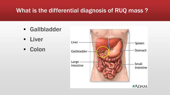 What is the differential diagnosis of RUQ