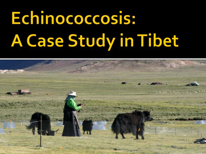 echinococcosis a case study in tibet n.