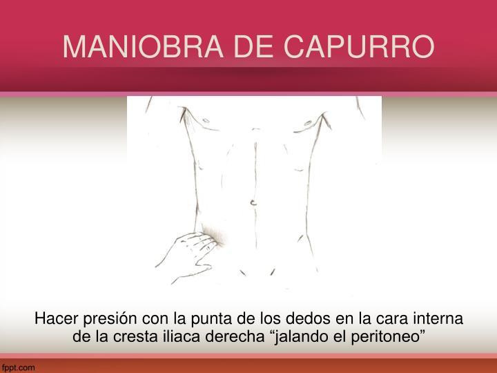MANIOBRA DE CAPURRO