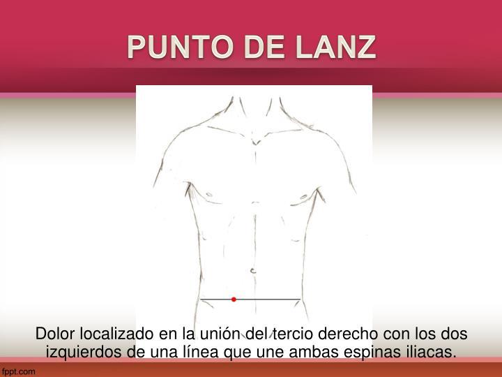 PUNTO DE LANZ