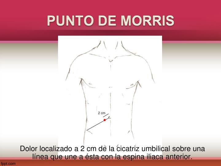 PUNTO DE MORRIS