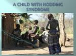 a child with nodding syndrome