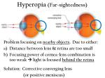 hyperopia far sightedness