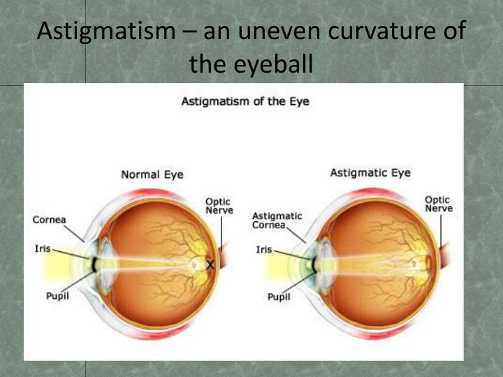 Astigmatism – an uneven curvature of the eyeball