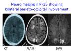 neuroimaging in pres showing bilateral parieto occipital involvement