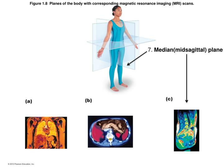 Figure 1.8  Planes of the body with corresponding magnetic resonance imaging (MRI) scans.