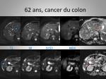 62 ans cancer du colon