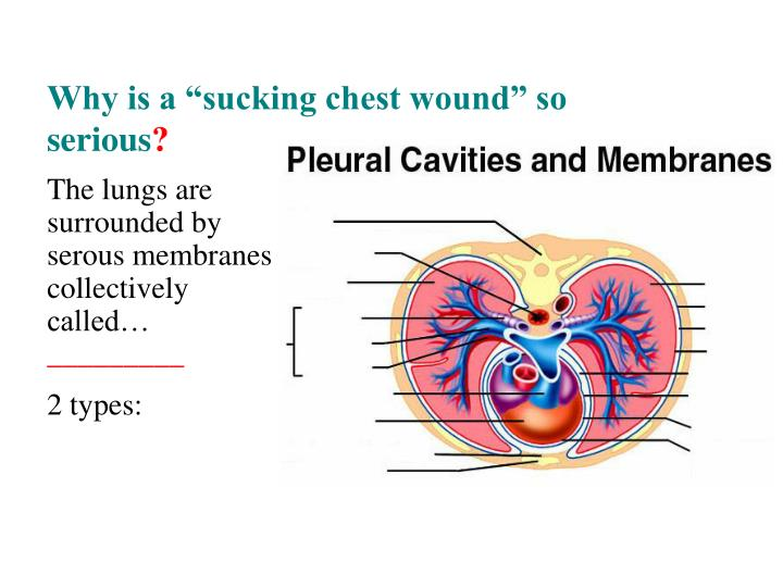 """Why is a """"sucking chest wound"""" so serious"""
