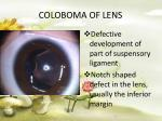 coloboma of lens