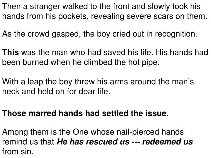 Then a stranger walked to the front and slowly took his hands from his pockets, revealing severe scars on them.