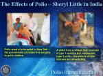 the effects of polio sheryl little in india