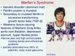 marfan s syndrome