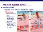 why do injuries swell