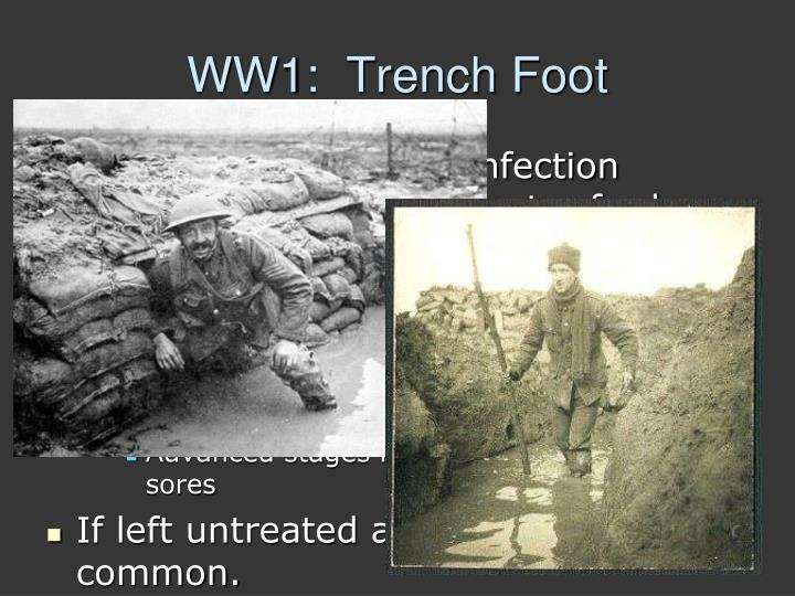 WW1:  Trench Foot