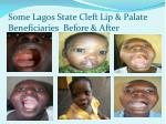 some lagos state cleft lip palate beneficiaries before after