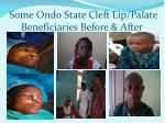 some ondo state cleft lip palate beneficiaries before after