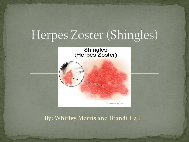 essays on shingles-zoster Herpes zoster - etiology, pathophysiology, symptoms, signs, diagnosis & prognosis from the merck manuals and herpes zoster (shingles.