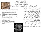 mri magnetic resonance imaging