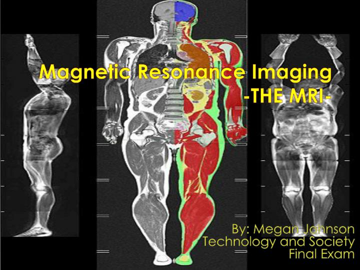 magnetic r esonance imaging the mri n.