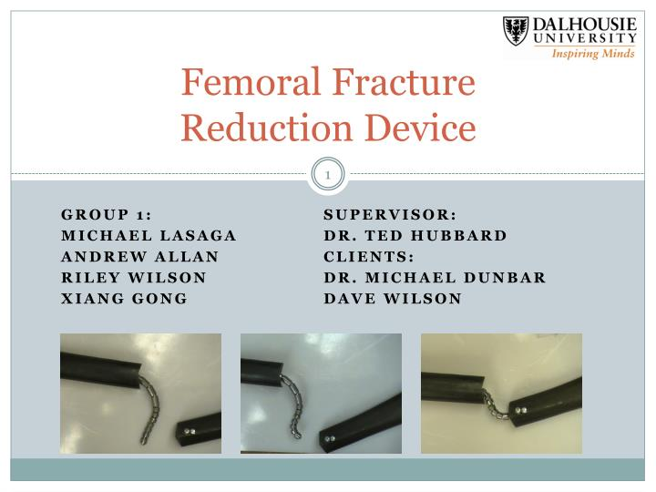 femoral fracture reduction device n.