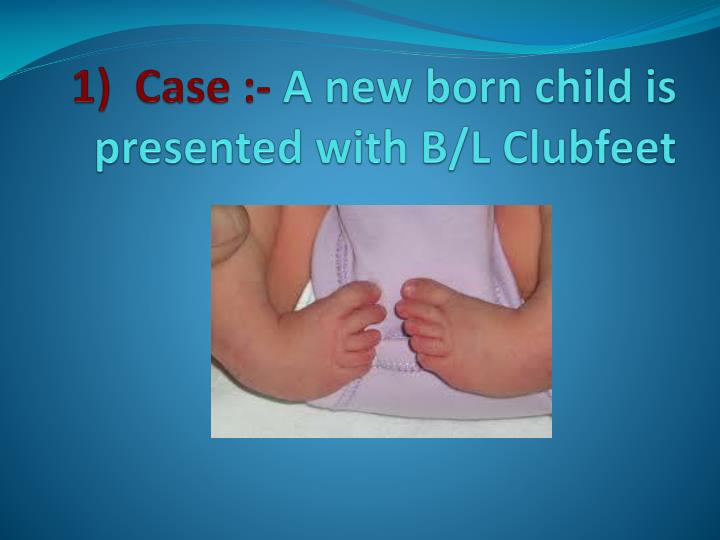 1 case a new born child is presented with b l clubfeet n.