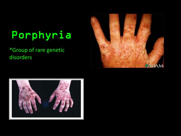 english porphyria Porphyria definition: a condition in which there are too many enzymes called porphyrins in the blood and urine causing problems with the nerves learn more.