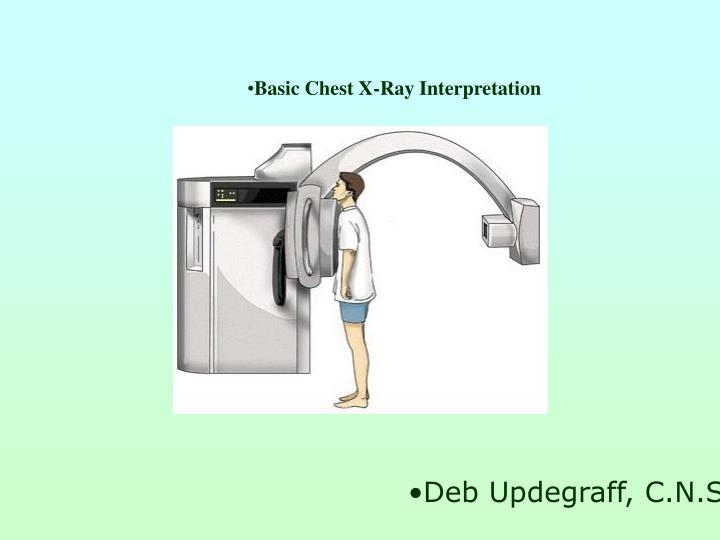 Basic Chest X-Ray Interpretation
