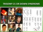 trisomy 21 or down syndrome